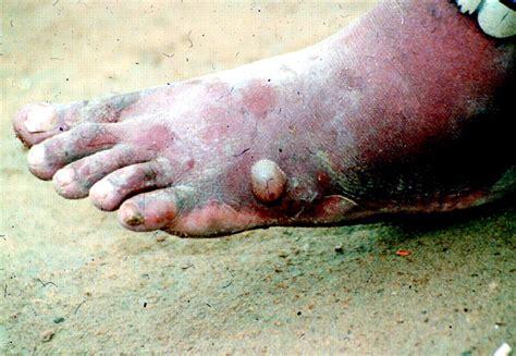 Dracunculiasis Guinea Worm Disease Cmaj