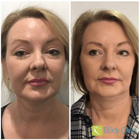 Best non surgical facelift uk