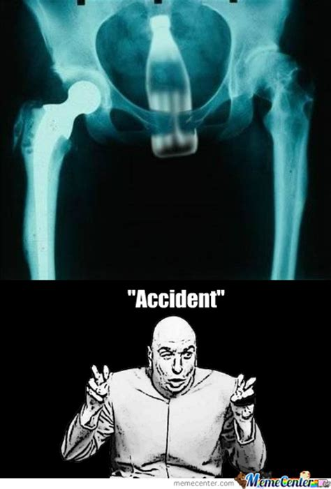 Xray Meme - xray memes best collection of funny xray pictures