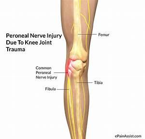 Sciatic Nerve Palsy | Symptome Ischias