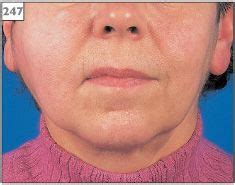 Right Parotid Gland Swelling