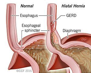what does alcohol do to your esophagus