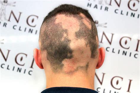 alopecia areata el tratamiento mas efectivo