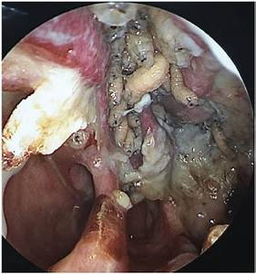 Nasal Endoscopy Of The Left Nasal Cavity Reveals Multiple Fly Larvae