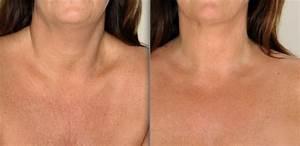 FAQs Sleeping Bra to, prevent, wrinkles