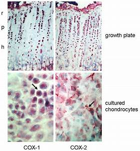 Cyclooxygenase (COX) expression in rat growth plate ...