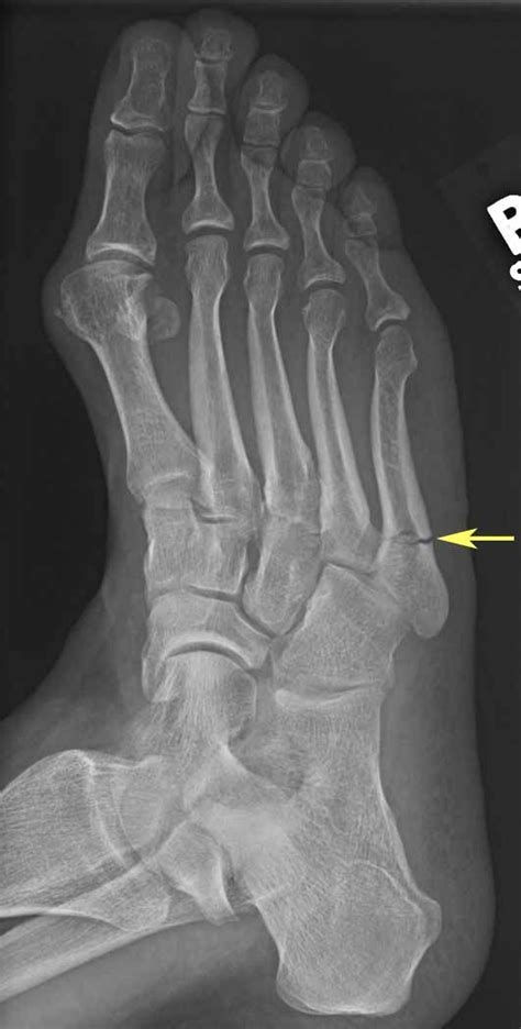 How long does it take for a broken bone in your foot to