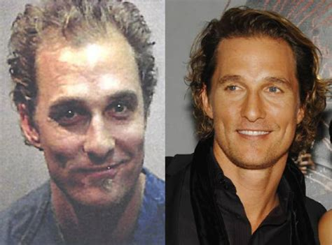 Matthew Mcconaughey Hair Transplant Plastic Surgery Hairline