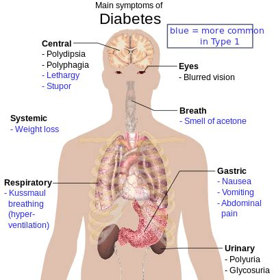 type  diabetes wikipedia
