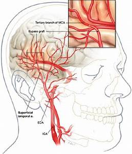 Regional cerebral perfusion and ischemic status after ...