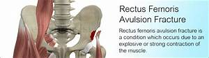 Rectus Femoris Avulsion Fracture