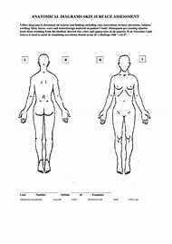 Best 25 ideas about body chart find what youll love skin assessment body diagram form ccuart Image collections