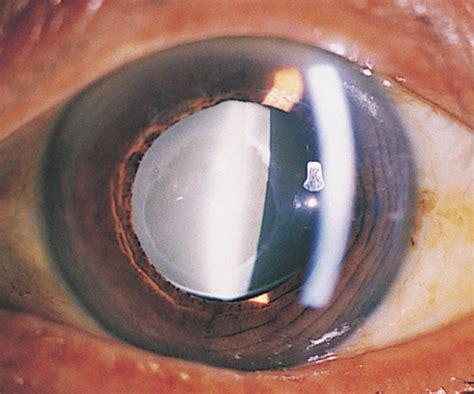 hydroxyapatite formation  implanted hydrogel intraocular