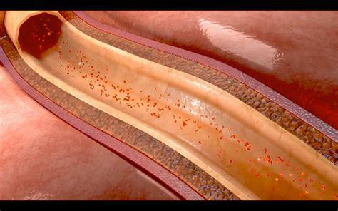 vasi addominali diagnostica vascolare chirofisiogen center
