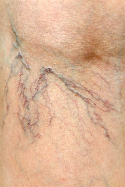 Varicose & Spider Veins: Does My Insurance Cover It? - NJVVC