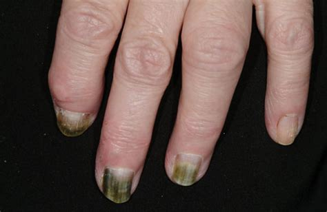 treat nail psoriasis  pictures