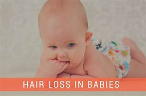 Hair Loss In Infants Day Care Quincy MA A Child39s View