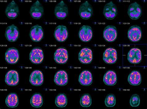 brain dopamine release reduced  severe marijuana