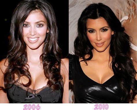 FASHION EXTRA: Kim Kardashian Has Kim Kardashian Had ...