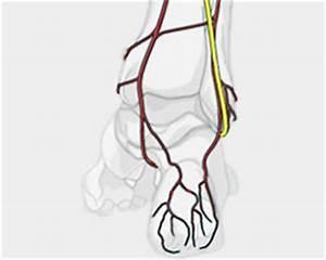 Mortons Neuroma, Foot Nerve Pain, Podiatrist Los Angeles
