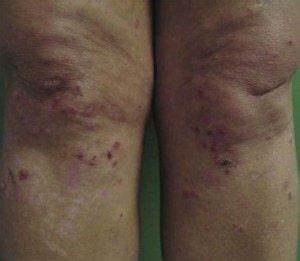 Dermatitis Herpetiformis or Duhring's Disease – Gluten ...