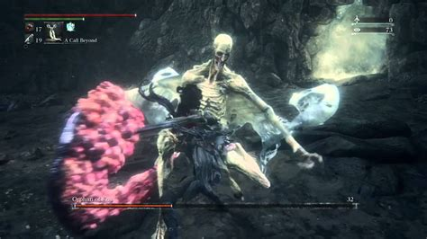 Orphan of Bloodborne Kos