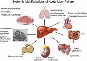 10 Signs  U0026 Symptoms Of Liver Damage
