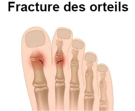 fracture de lorteil symptomes traitement definition