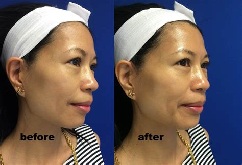 Hydrafacial Md® Before And After  Mama In Heels. How To Clean Kitchen Grout Tile Floor. Fluorescent Under Cabinet Lighting Kitchen. How To Install Ceramic Tile Backsplash In Kitchen. Island Ideas For Kitchen. Latest Kitchen Appliances. Kitchens With Islands Images. Kitchen Island Tables Ikea. Mahogany Kitchen Island