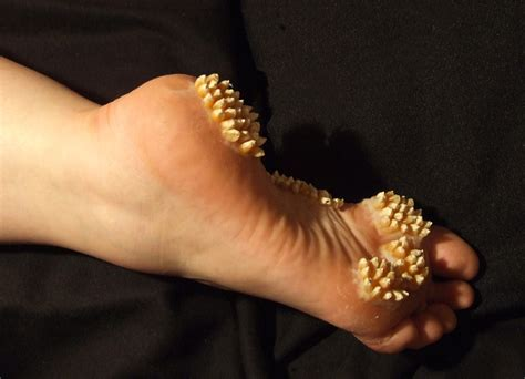 Trypophobia Feet Cystburstingcom