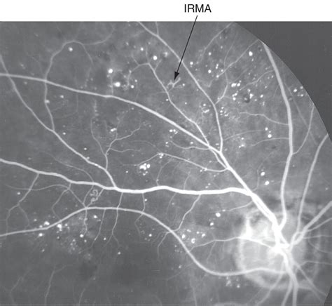 intraretinal microvascular abnormalities american