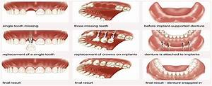 Different Types Of Dental Implants   Hair Loss Treatment