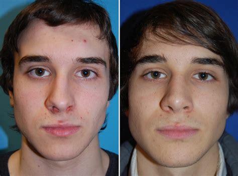 funktionelle bzw rekonstruktive nasenchirurgie facharzt