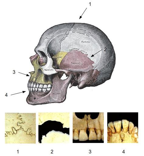 Spojení kostí - WikiSkripta