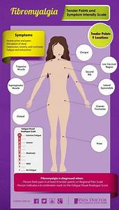 Why Fibromyalgia Tender Points Are Important For Diagnosis