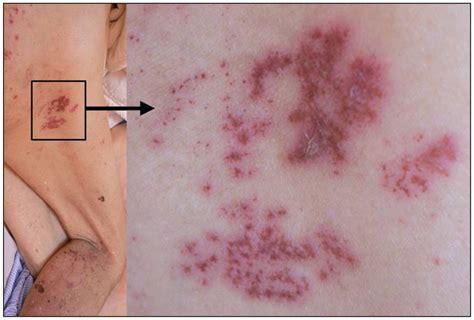 sacral herpes zoster presenting  sciatica cmaj