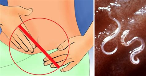 early warning signs      parasite