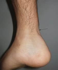 Achilles Tendon Rupture Symptoms