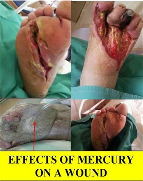 cfl mercury effects on a wound gerano energy saving