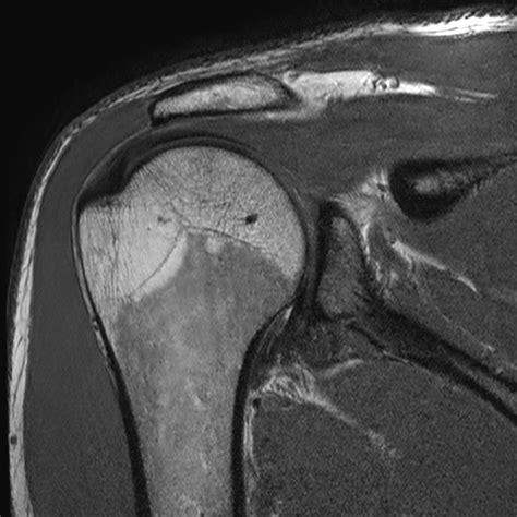 MRI Internal Impingement Shoulder