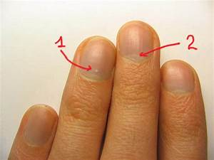 Грибок акриловыми ногтями