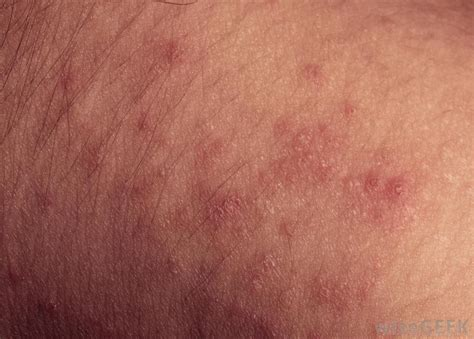 Heat Rash From Tanning Bed by What Is Prickly Heat Rash With Pictures