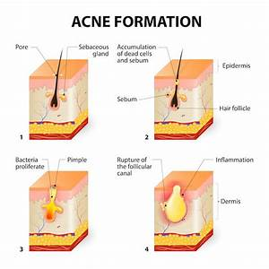 Accutane Acne Treatment Singapore