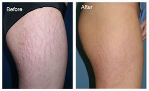 10 Ways to Get Rid of Stretch Marks on Legs Fast | HowHunter