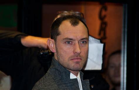 Undercut Hairstyle Men Receding Hairline