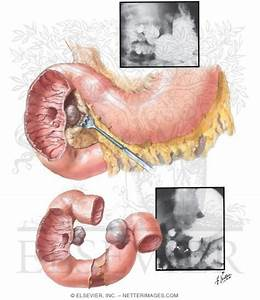 Diverticula Of The Duodenum