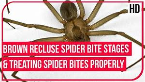Brown Recluse Spider Bite Stages and Treating Spider Bites ...