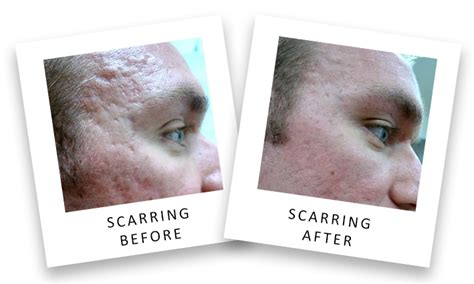 Scarring (Acne, Keloid, Atrophic Scars) Treatment Options
