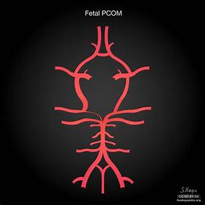 Common Variants Of The Circle Of Willis  Illustrations