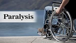 Diagram Of Paralysis
